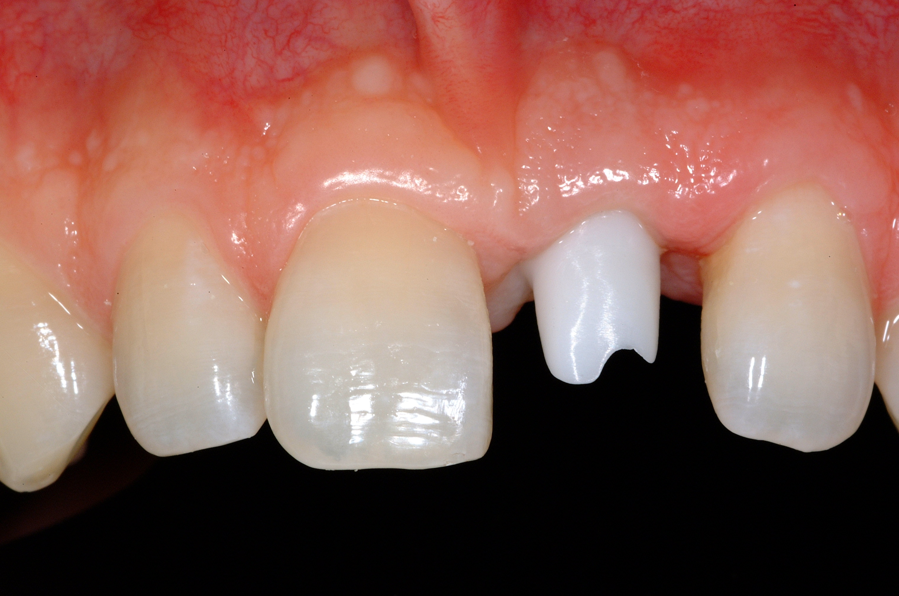 Before Single Tooth Replacement by Dental Implant