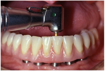 Implant Supported Hybrid Prosthesis