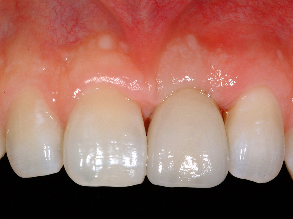 After Single Tooth Replacement by Dental Implant