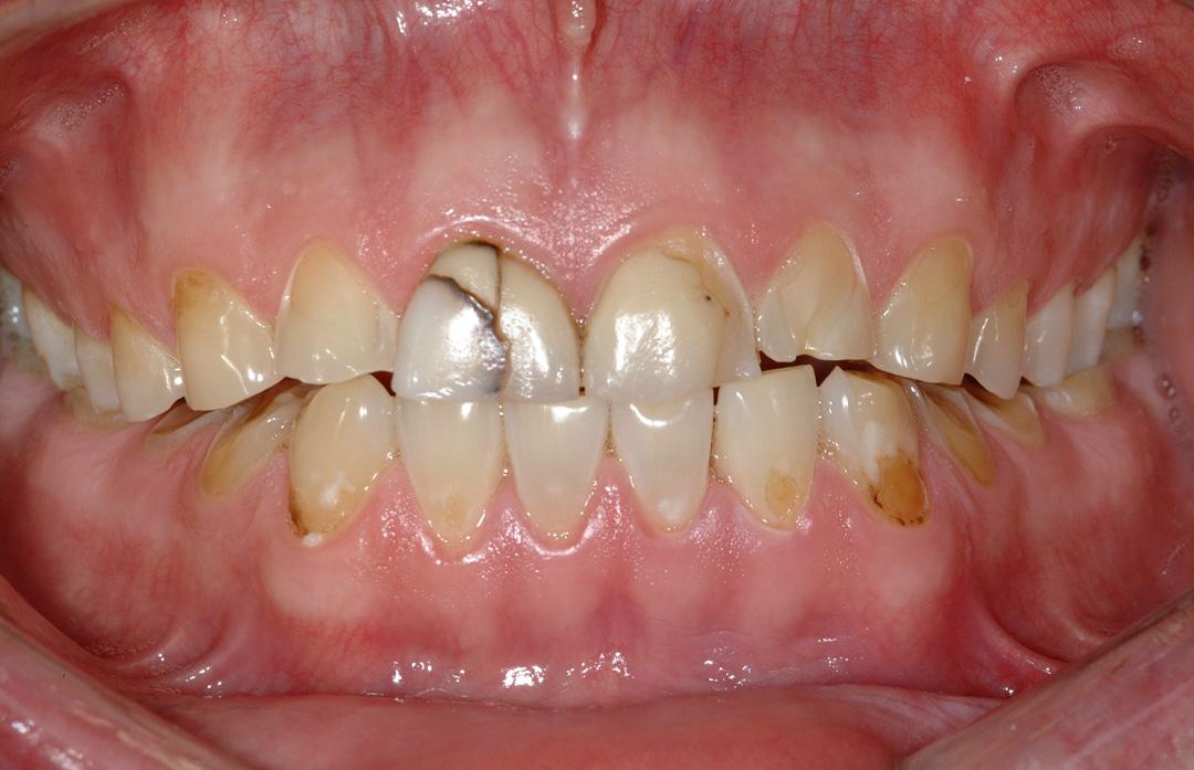 Before Full Mouth Rehabilitation